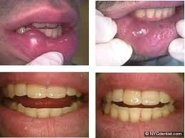 pathology cine mucocele recurrence lip biting habit cheek recurring diagnosis