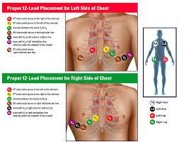 Ekg Lead Placement Chart 12 Lead Ecg Placement Mnemonic Google Search 12 Lead Ekg