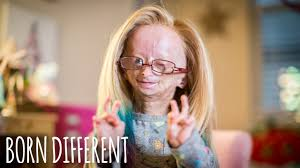 Adalia Rose: The <b>Girl</b> Who Ages Too Fast | BORN DIFFERENT ...