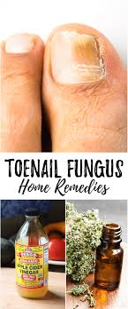 home remes for toenail fungus that really work toenail fungus can be embarrassing cure