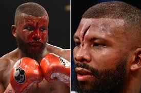 Mike Tyson vs Roy Jones Jr: Badou Jack ...