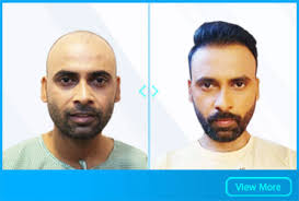 best hair transplant doctor clinic in