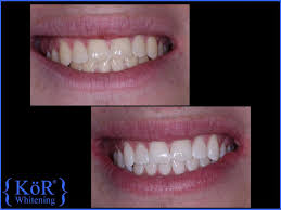 Ata Dental Design Orlando Fl Kor Whitening Ata Dental
