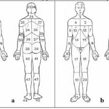 Pdf Ankylosing Spondylitis And A Diagnostic Dilemma Coccydynia