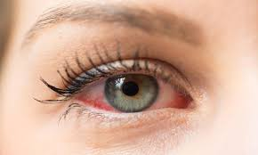 Pics Of Eyes Five Reasons You Should Protect Your Eyes From The Sun Year Round