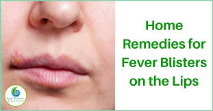 13 home remes for fever blisters on