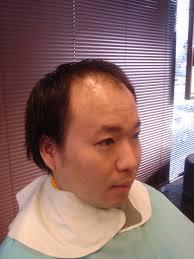 坊主 髪型 カタログ 薄毛 Utsukushi Kami