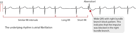 Ecg Chart Examples Atrial Fibrillation Ecg Classification Causes Risk