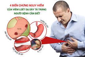 Thuốc chữa đau dạ dày : Top 10+ thuốc đặc trị viêm loét dạ dày – tá