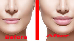how to get pouty lips home remes to get perfect lips