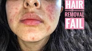 nair burned my face