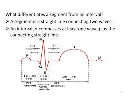 Ecg Chart Labeled Electrocardiography Ecg
