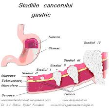 Durerea in capul pieptului (epigastru) gastroenterologie