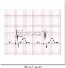 Free Art Print Of Medical Electrocardiogram Illustration Of Medical
