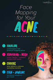 Acne Face Chart What Acne Spots On Your Face Mean According To Science