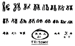 trisomy the origin of down syndrome male trisomy 21 trisomy 21 karyotype