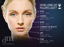 a diagram ilrating how long a specific filler procedure will last on a given treatment area