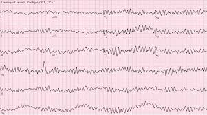 Types Of Arrhythmia Chart Arrhythmia Wikipedia