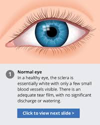 Conjunctivitis: Bacterial, Viral, Allergic and Other Types ...