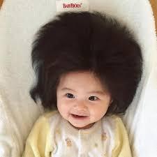 爆毛赤ちゃんの原因は病気なの髪が多いふさふさの理由は行列
