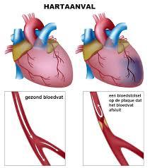 Symptomen ontstoken hartzakje