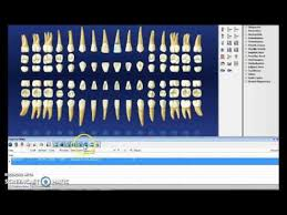Dentrix Perio Charting Dentrix Step By Step Charting Youtube