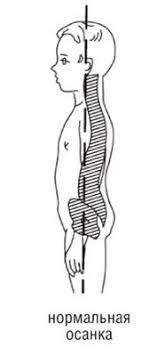 Реферат Нарушение осанки Читать Неправильная осанка является одним из симптомов который относится к группе патологий связанных с искривлением позвоночного столба