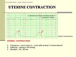 Pregnancy Labor Contractions Chart 4 Normal Labour And Delivery