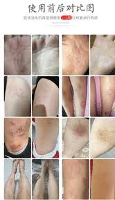 ГГ.ДЖ.ДЖ ( YIGANERJING ) против псориазис | дерматит | екзема | сърбеж |  лишей | обриви | гъбички | себореа | хемороиди