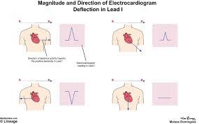 How To Read Cardiogram Chart Electrocardiogram Ecg Cardiovascular Medbullets Step 1