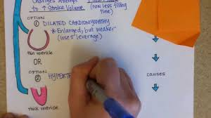 Pathophysiology Of Chf Congestive Heart Failure Pathophysiology Youtube