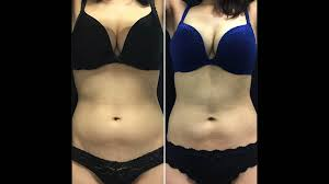 Contour Light Body Sculpting Before And After Laser Lipo Vs Coolsculpting