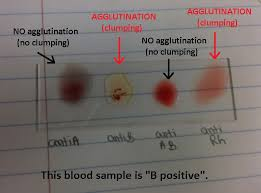 how blood typing works