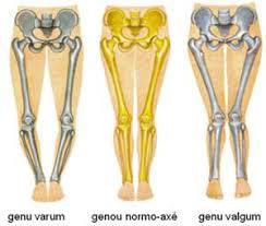 Coxa Vara Lower Body Dysfunction Physiorehab Physiorehab