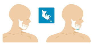 Chin Implant Size Chart Genioplasty Chin Surgery Types Complications And Outlook