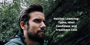 hairline lowering types ideal