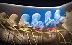 Whats A Facet Facet Joint Injections Treatment For Spinal Arthritis Or Facet Pain