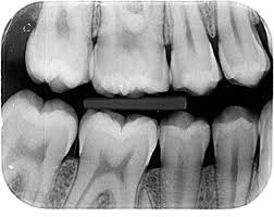 Afbeeldingsresultaat voor rontgenfoto gebit
