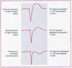 Stemi Leads Chart Right Ventricular Infarction Part 3 Ems 12 Lead