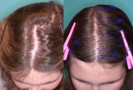 نتيجة بحث الصور عن women's hair transplant pictures