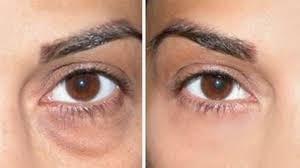 meet the stanford cal student who used her universities money to erase the dark circles under her eyes