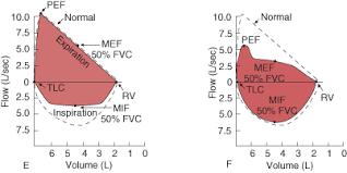 Airflow Lung Volumes And Flow Volume Loop Pulmonary