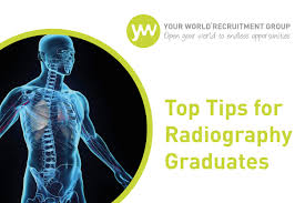 top tips for radiography graduates your world healthcare uk top tips for radiography graduates