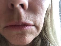 lines above lip photo