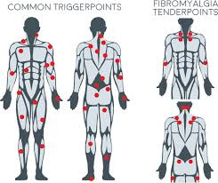 Free Trigger Point Chart Trigger Points Therapy Info And Chart Body Back Company