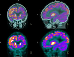 how a pet scan works pet scans uses risks and procedure