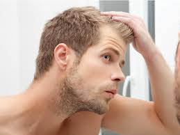 Baldness Hair Style 7 most mon causes of mens hair loss business insider 4506 by wearticles.com