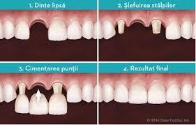 Fixacni gel na zuby