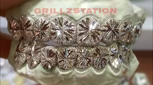 Grillz Designs Grillz White Gold Starburst With Dust Finish Youtube