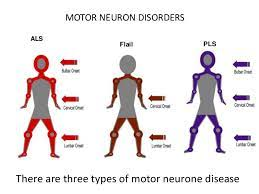 motor neuron disease in turkey